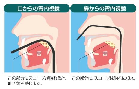 経鼻内視鏡と経口内視鏡を選べます